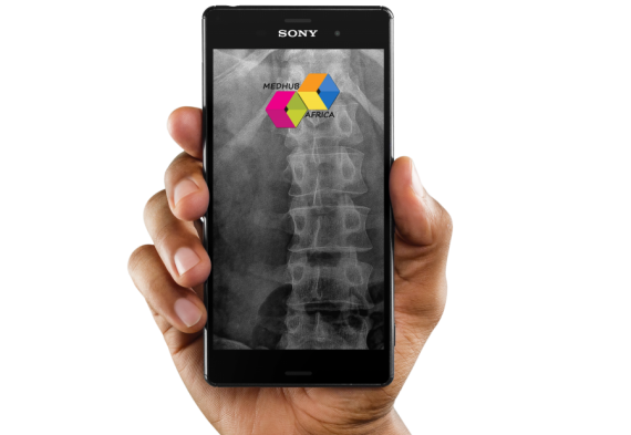 sony-xperia-z5-mockup-held-vertically-over-a-transparent-background-a10998